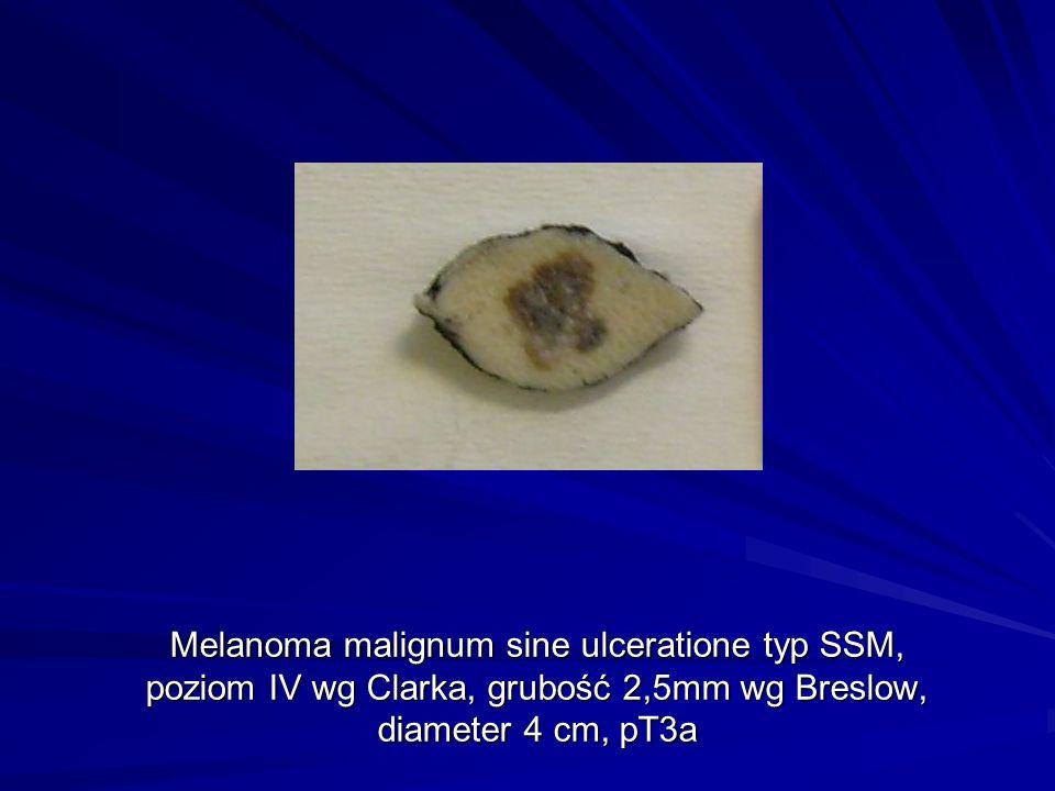 Melanoma malignum sine ulceratione typ SSM, poziom IV wg Clarka, grubość 2,5mm wg Breslow, diameter 4 cm, pT3a