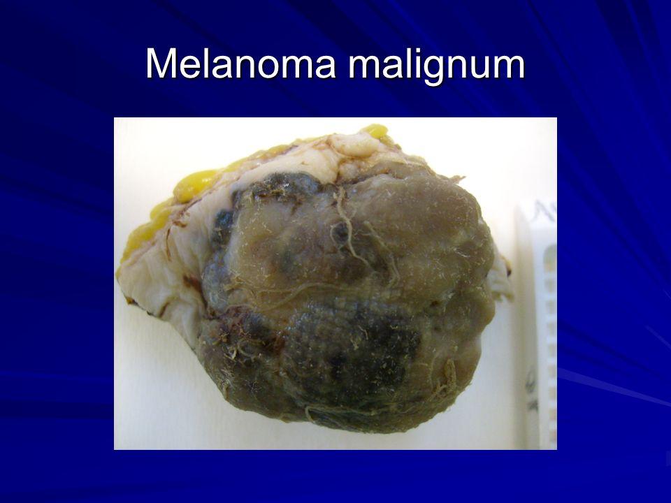 Melanoma malignum