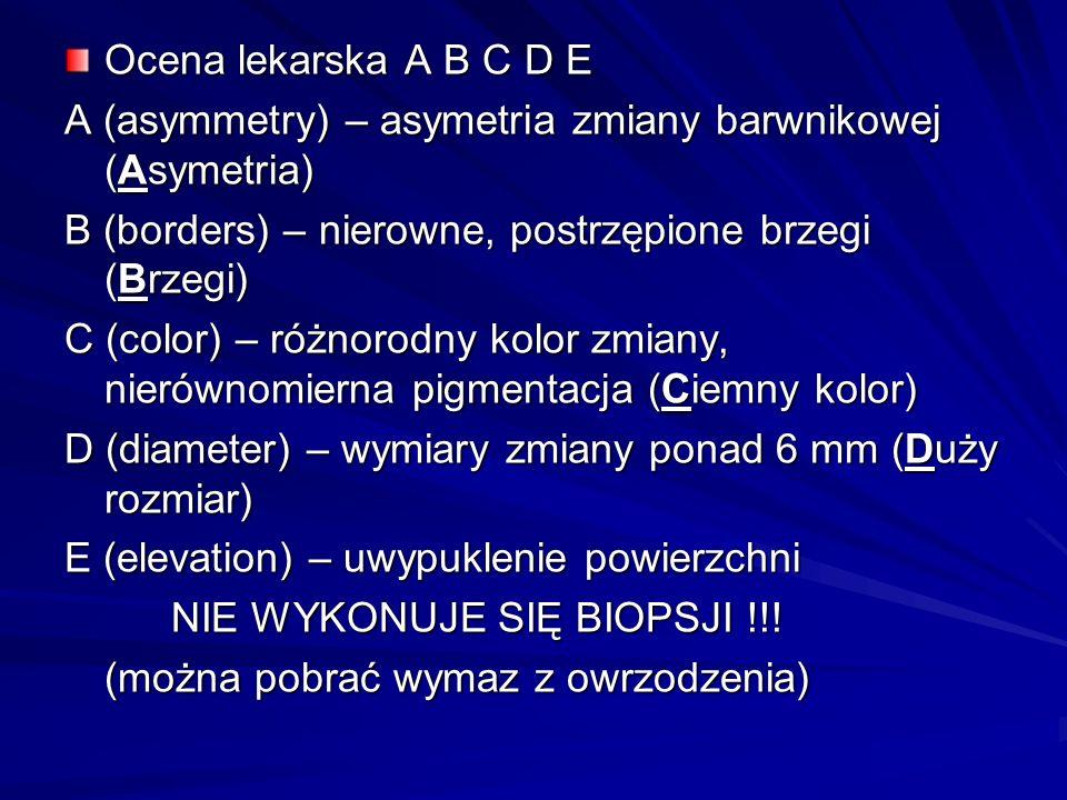 Ocena lekarska A B C D EA (asymmetry) – asymetria zmiany barwnikowej (Asymetria) B (borders) – nierowne, postrzępione brzegi (Brzegi)