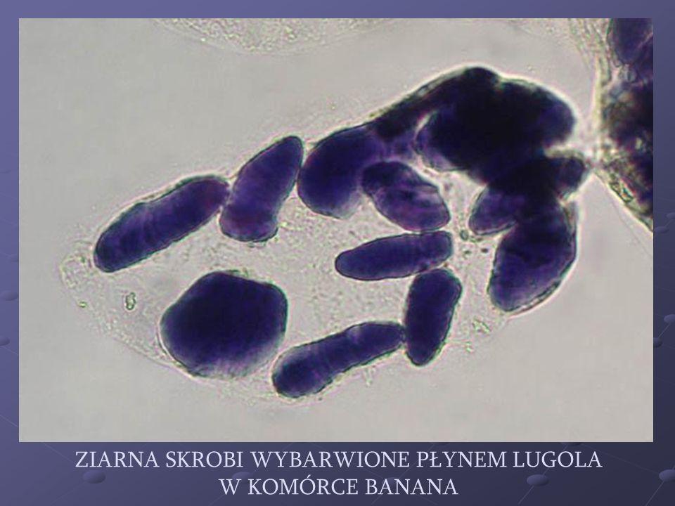 Ziarna skrobi wybarwione płynem Lugola w komórce banana