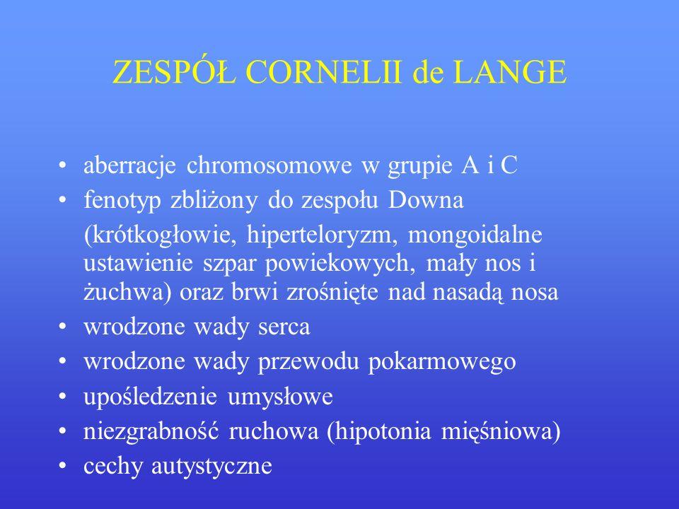 ZESPÓŁ CORNELII de LANGE