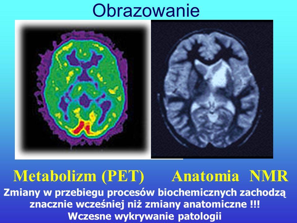 Obrazowanie Metabolizm (PET) Anatomia NMR