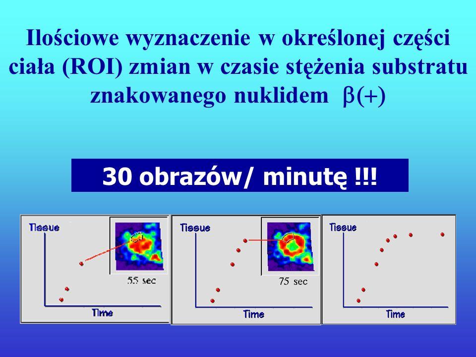 Ilościowe wyznaczenie w określonej części ciała (ROI) zmian w czasie stężenia substratu znakowanego nuklidem b(+)