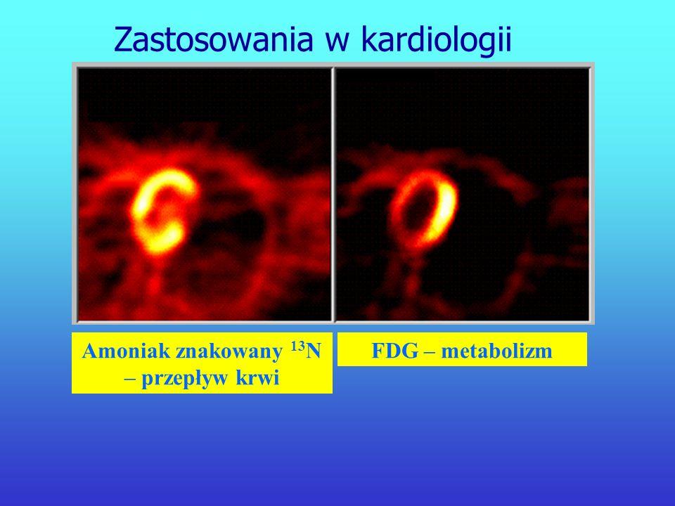 Amoniak znakowany 13N – przepływ krwi