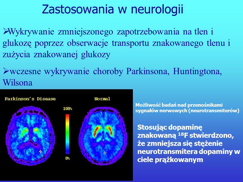 Zastosowania w neurologii