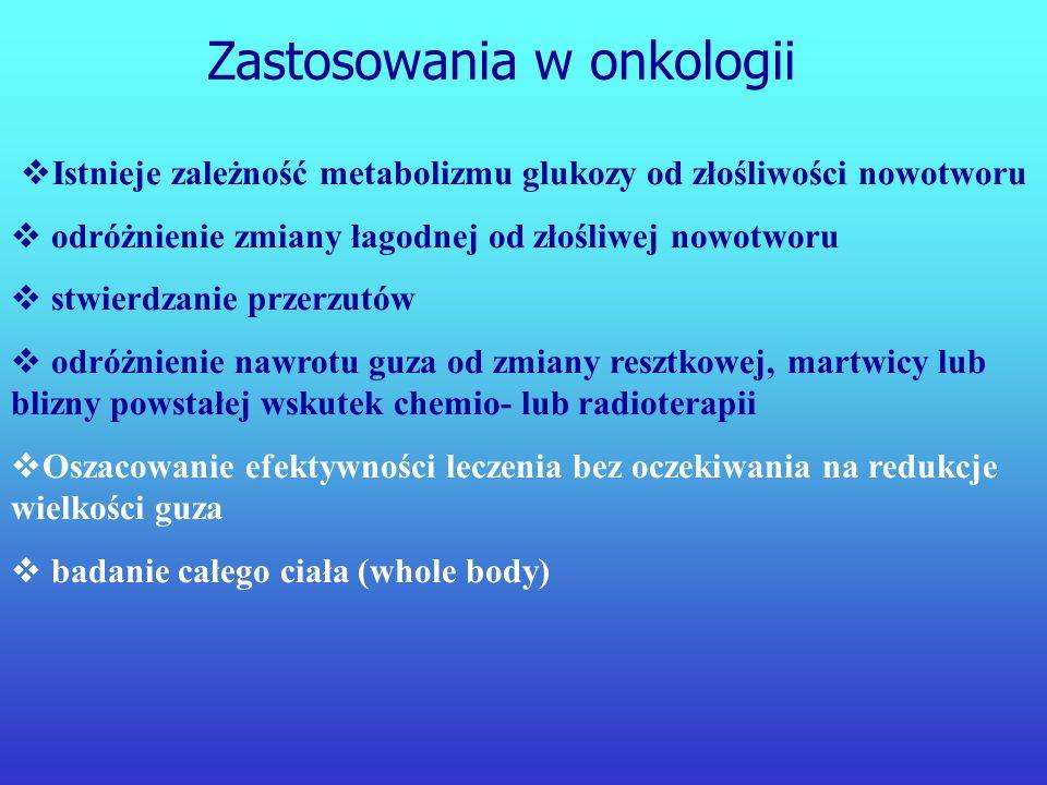 Istnieje zależność metabolizmu glukozy od złośliwości nowotworu
