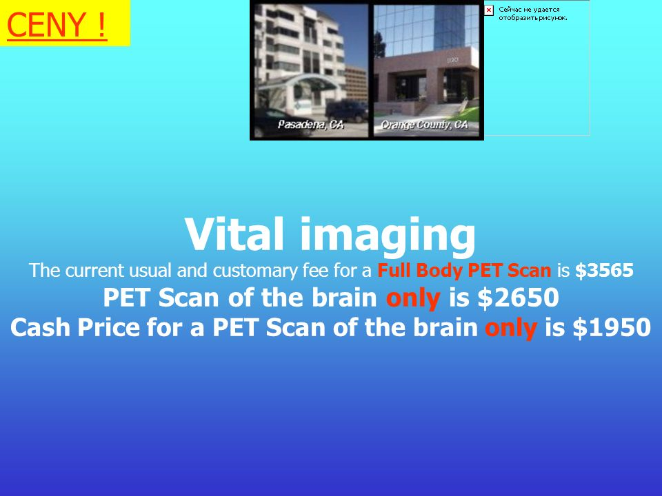 Vital imaging CENY ! PET Scan of the brain only is $2650