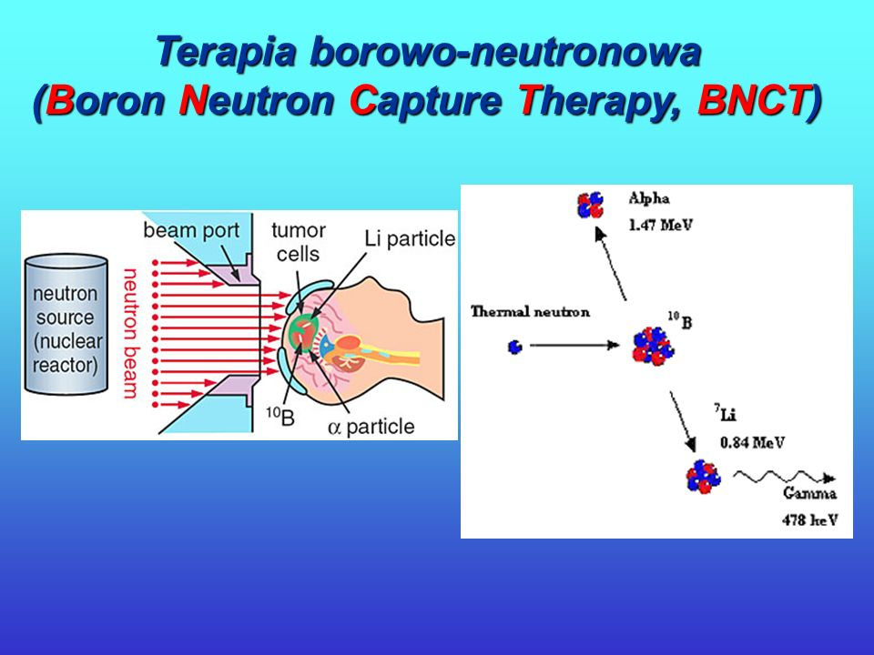 Terapia borowo-neutronowa (Boron Neutron Capture Therapy, BNCT)