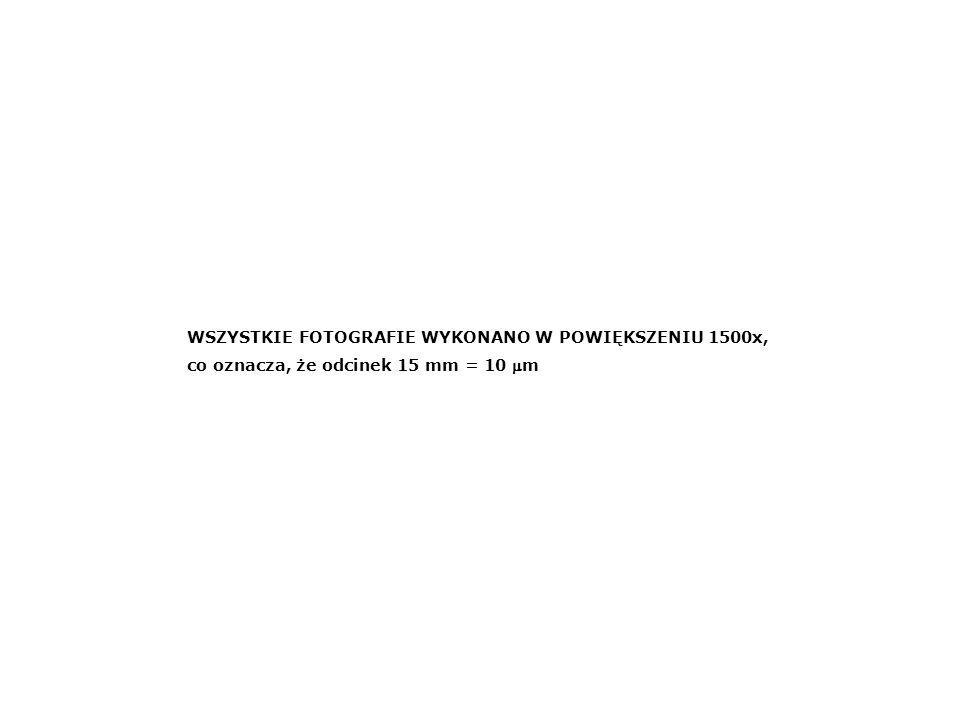 WSZYSTKIE FOTOGRAFIE WYKONANO W POWIĘKSZENIU 1500x,