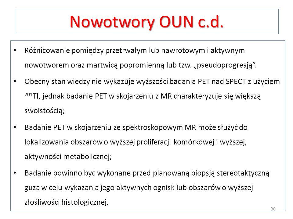 """Nowotwory OUN c.d.Różnicowanie pomiędzy przetrwałym lub nawrotowym i aktywnym nowotworem oraz martwicą popromienną lub tzw. """"pseudoprogresją ."""