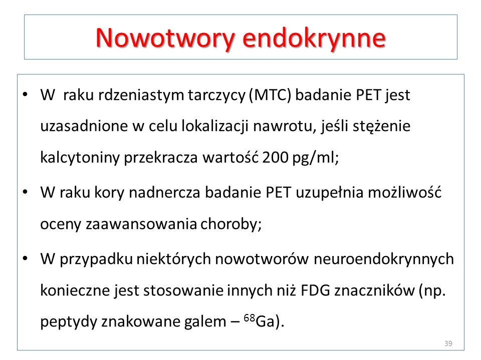 Nowotwory endokrynne