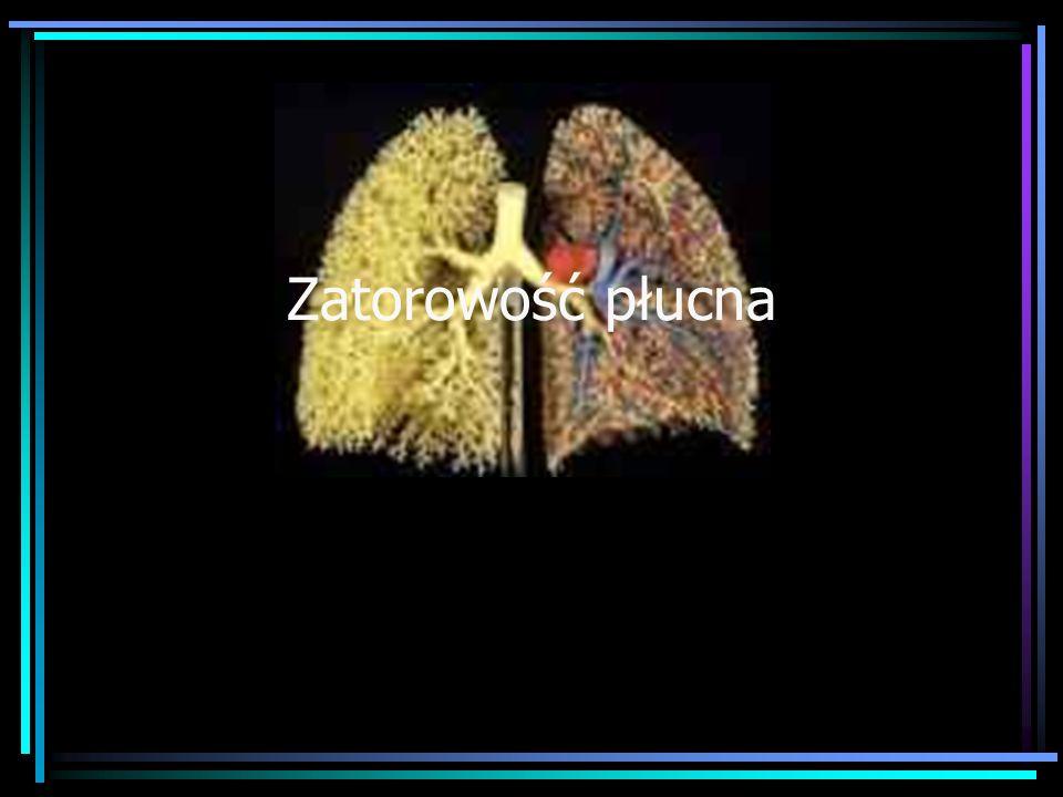 Zatorowość płucna