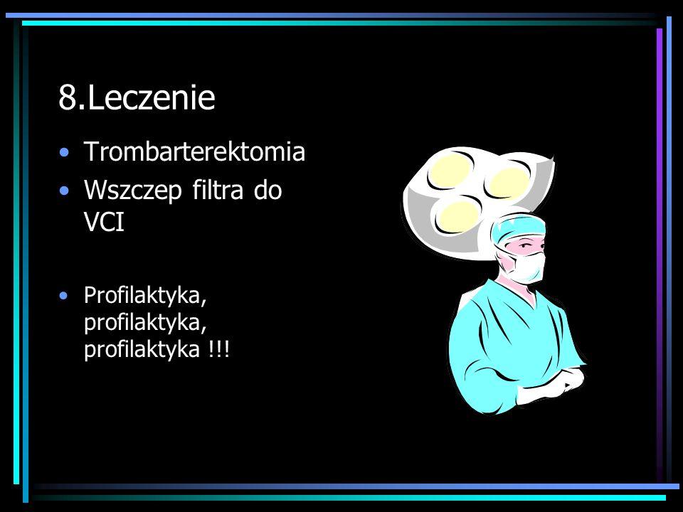8.Leczenie Trombarterektomia Wszczep filtra do VCI