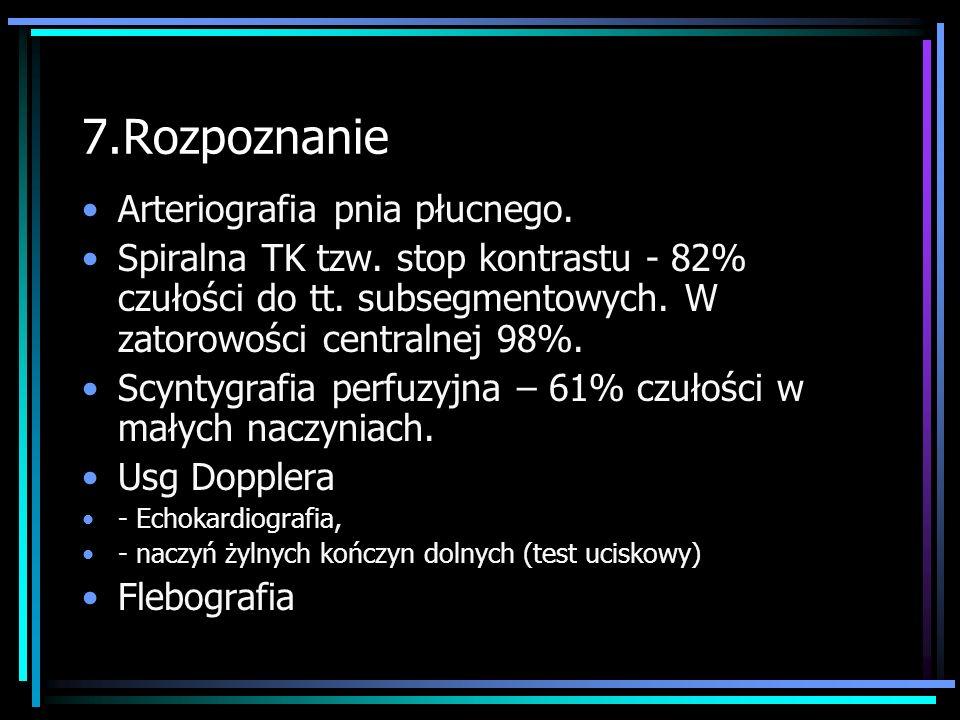 7.Rozpoznanie Arteriografia pnia płucnego.