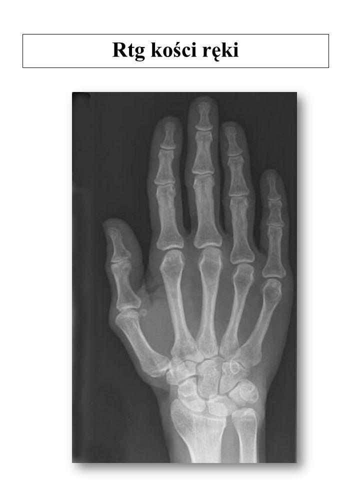 Rtg kości ręki