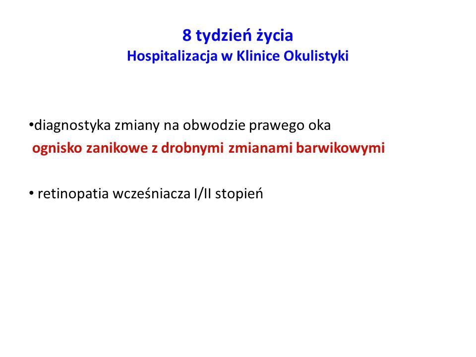 8 tydzień życia Hospitalizacja w Klinice Okulistyki