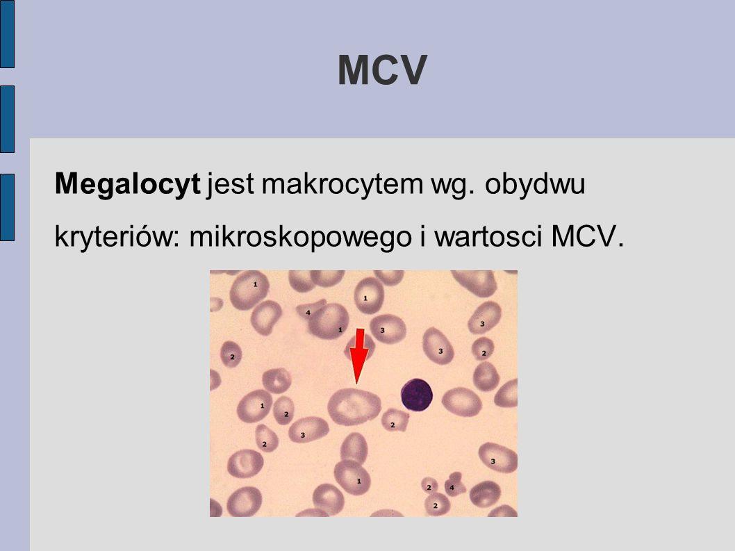 MCV Megalocyt jest makrocytem wg. obydwu kryteriów: mikroskopowego i wartosci MCV.
