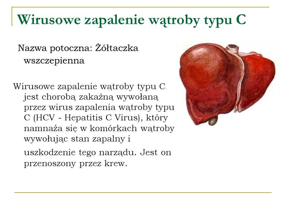 Wirusowe zapalenie wątroby typu C