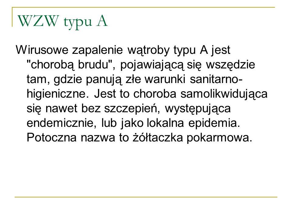 WZW typu A
