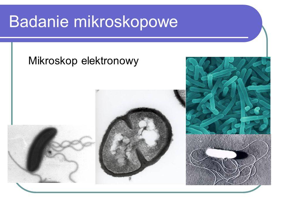 Badanie mikroskopowe Mikroskop elektronowy