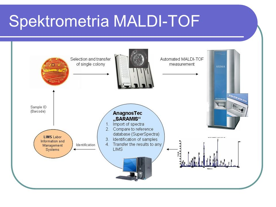 Spektrometria MALDI-TOF