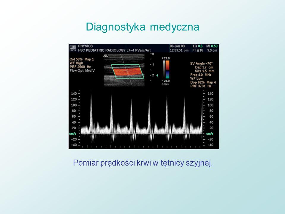 Pomiar prędkości krwi w tętnicy szyjnej.