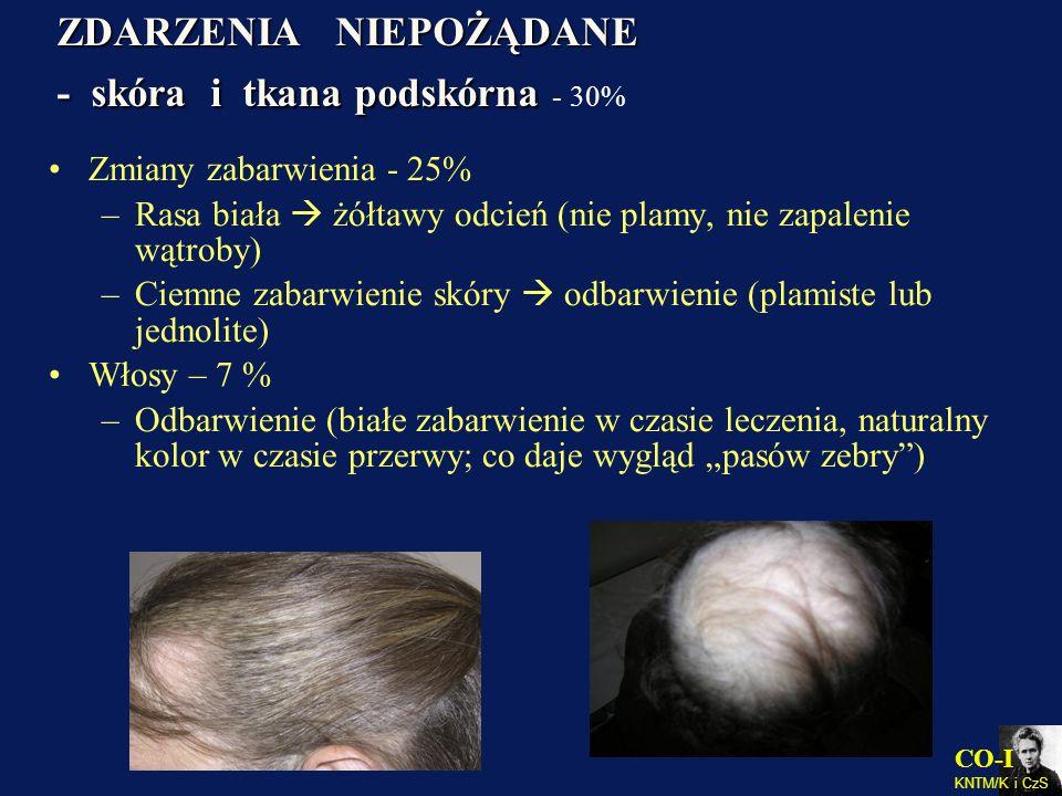 ZDARZENIA NIEPOŻĄDANE - skóra i tkana podskórna - 30%