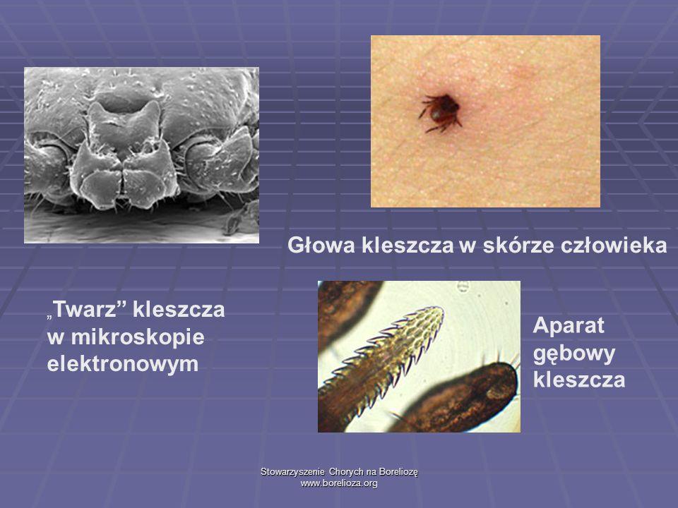 Stowarzyszenie Chorych na Boreliozę www.borelioza.org