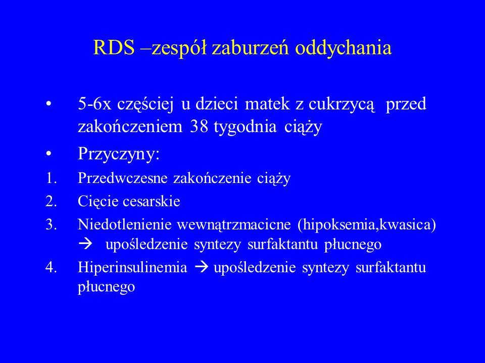 RDS –zespół zaburzeń oddychania