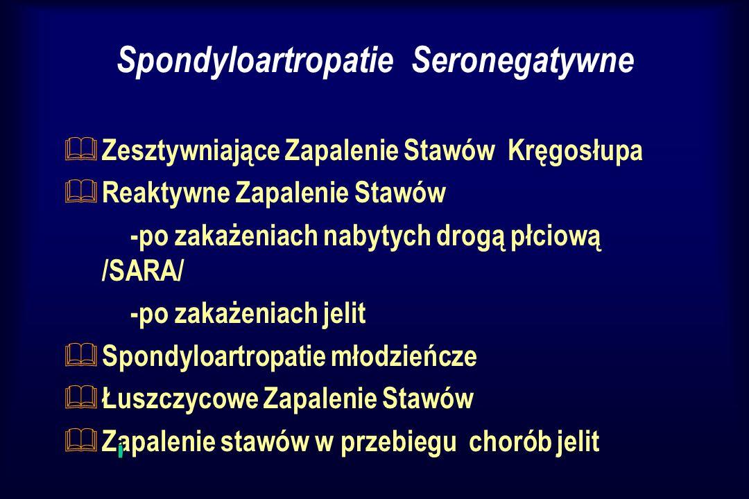 Spondyloartropatie Seronegatywne