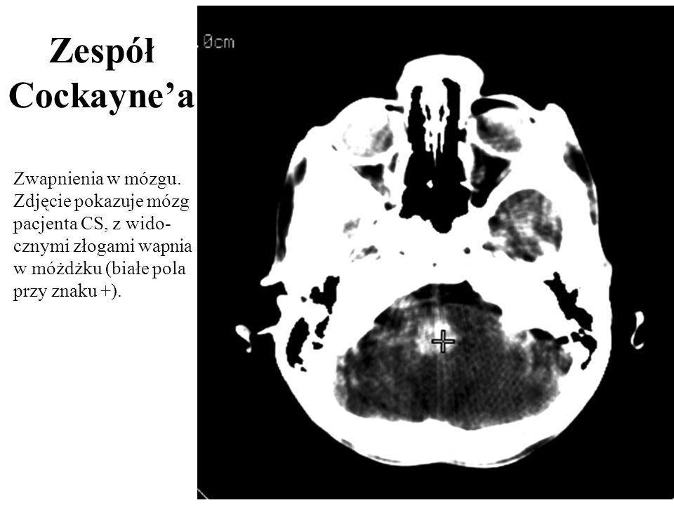 ZespółCockayne'a.Zwapnienia w mózgu.