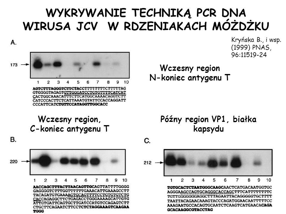 WYKRYWANIE TECHNIKĄ PCR DNA WIRUSA JCV W RDZENIAKACH MÓŻDŻKU