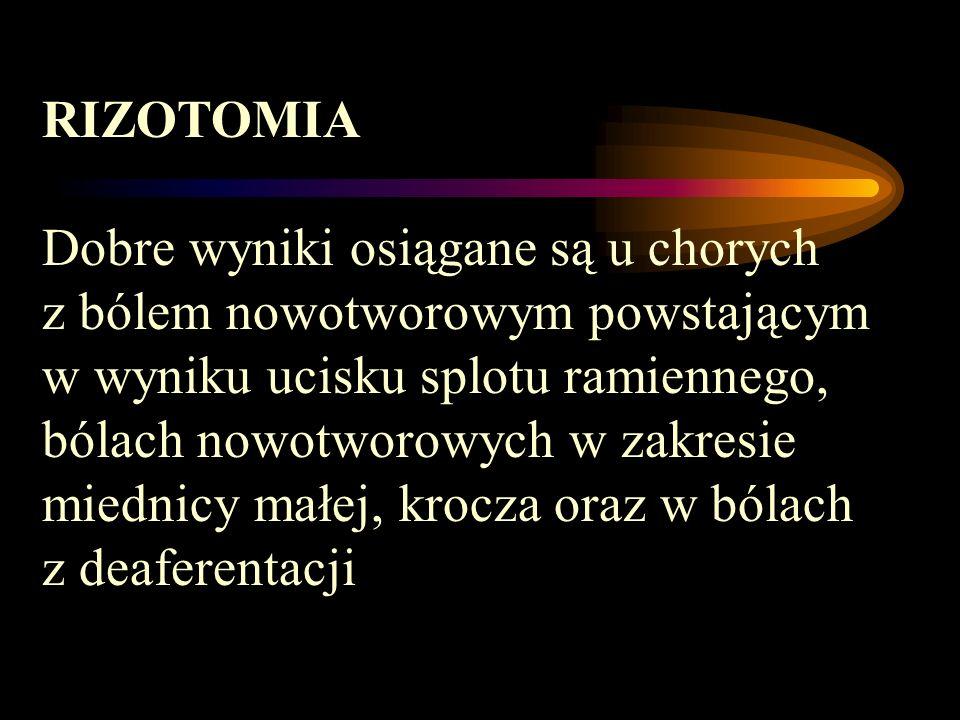 RIZOTOMIA