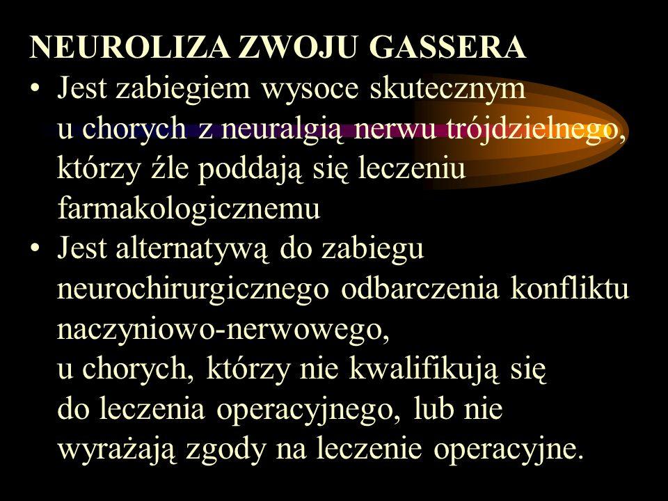 NEUROLIZA ZWOJU GASSERA