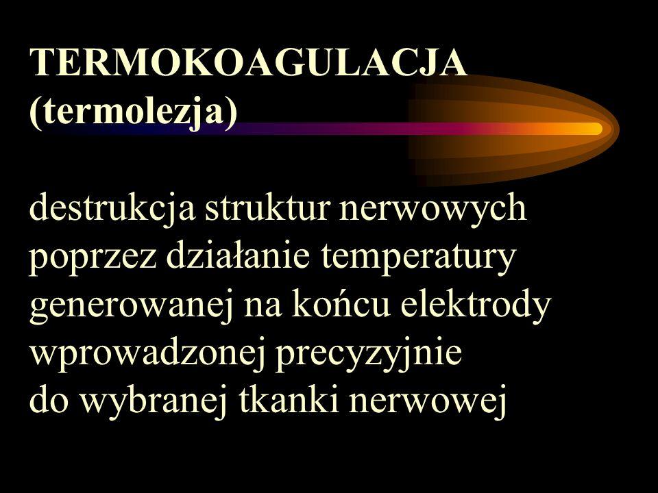 TERMOKOAGULACJA (termolezja)