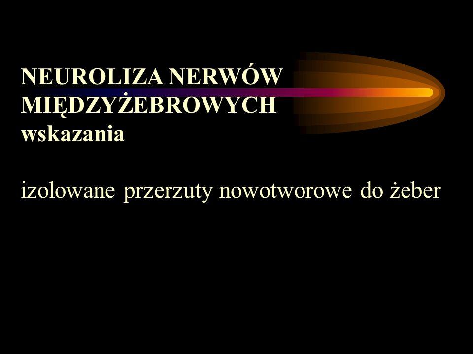 NEUROLIZA NERWÓW MIĘDZYŻEBROWYCH