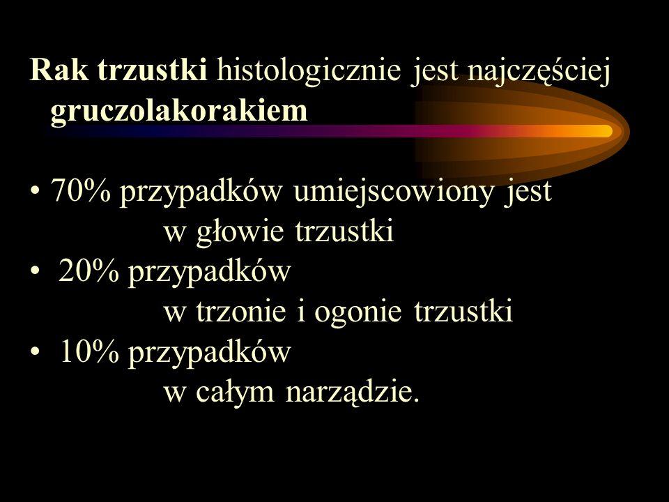 Rak trzustki histologicznie jest najczęściej gruczolakorakiem