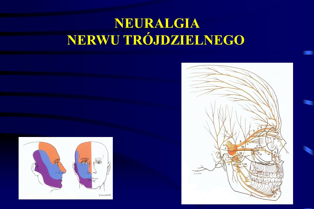 NEURALGIA NERWU TRÓJDZIELNEGO
