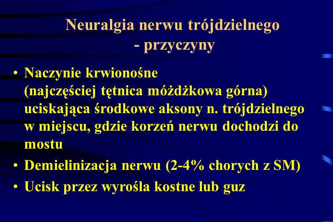 Neuralgia nerwu trójdzielnego - przyczyny