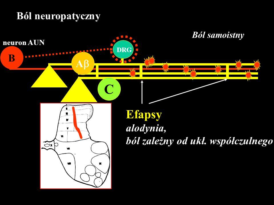 C Efapsy Ból neuropatyczny B A alodynia,