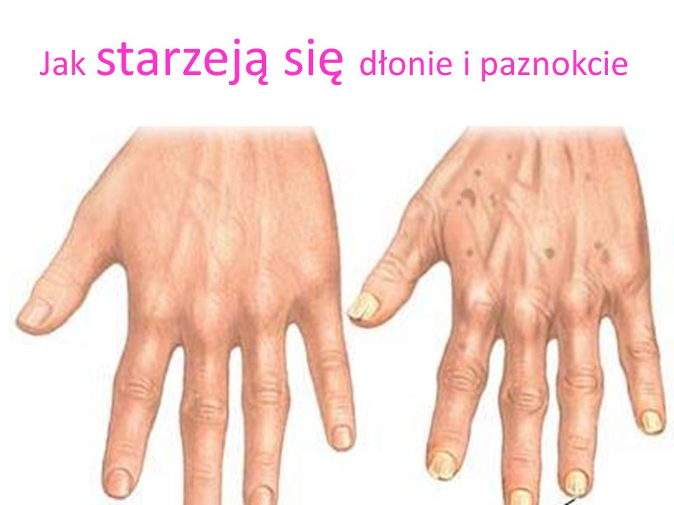 Jak starzeją się dłonie i paznokcie