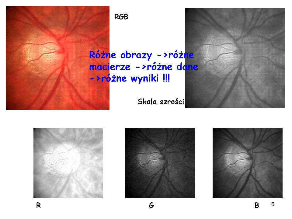 Różne obrazy ->różne macierze ->różne dane ->różne wyniki !!!