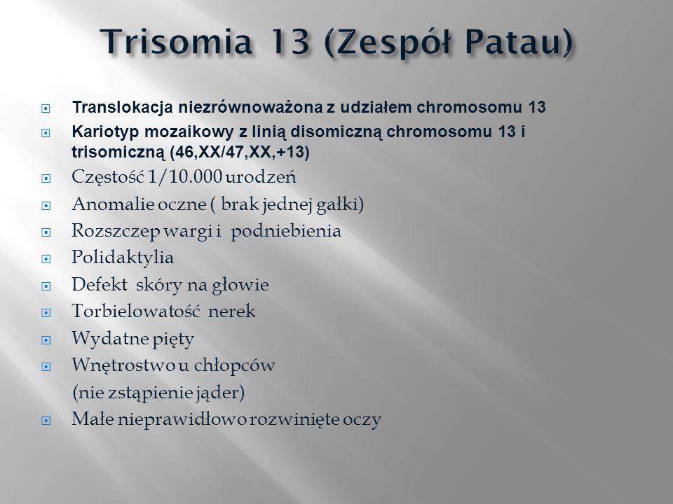 Trisomia 13 (Zespół Patau)