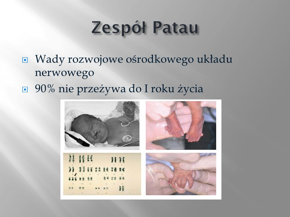 Zespół Patau Wady rozwojowe ośrodkowego układu nerwowego