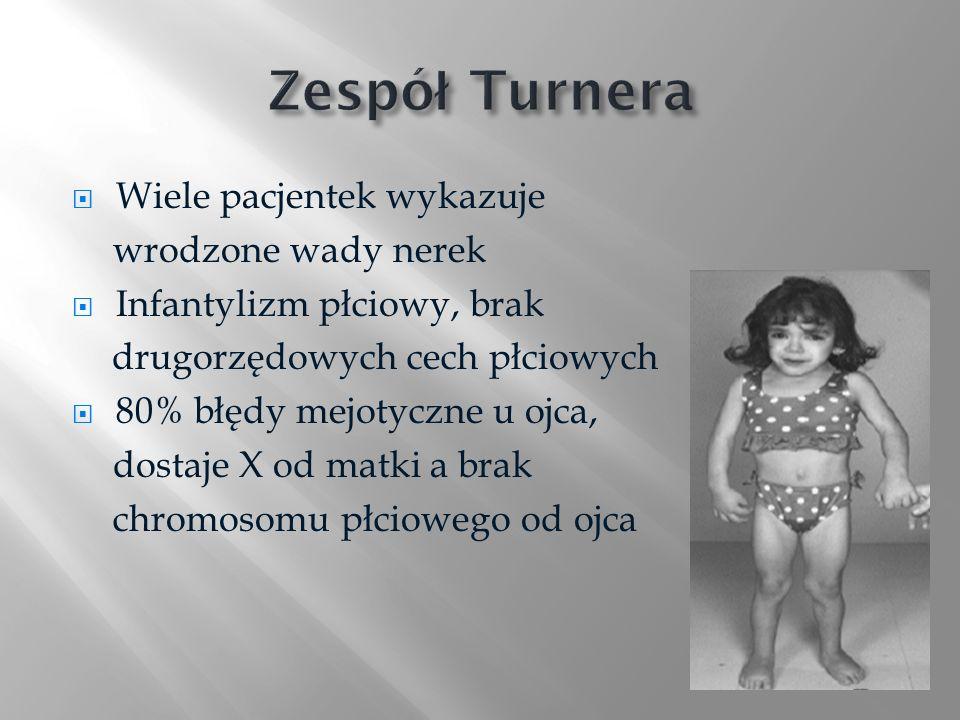 Zespół Turnera Wiele pacjentek wykazuje wrodzone wady nerek