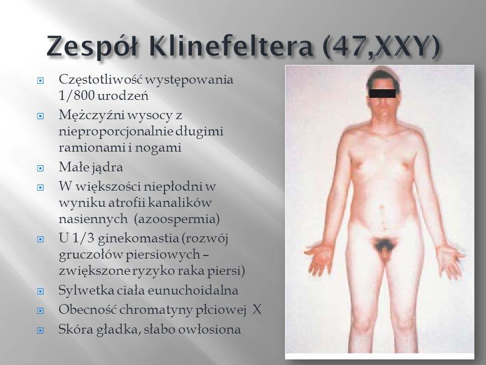 Zespół Klinefeltera (47,XXY)