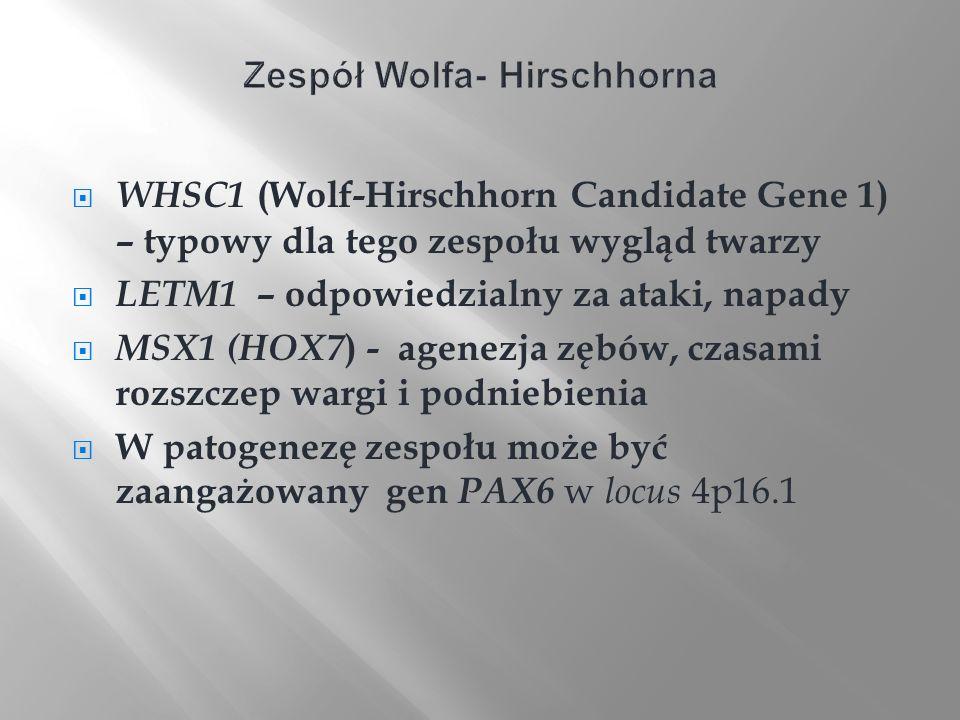Zespół Wolfa- Hirschhorna