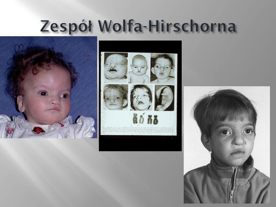 Zespół Wolfa-Hirschorna