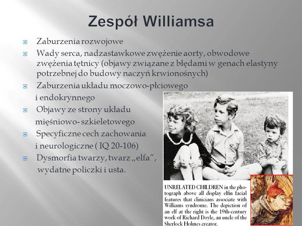Zespół Williamsa Zaburzenia rozwojowe