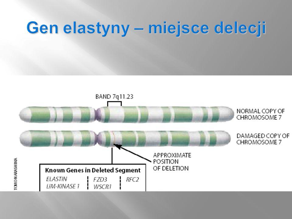 Gen elastyny – miejsce delecji